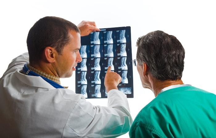 Douleurs musculaires chroniques: Syndrome de fibromyalgie