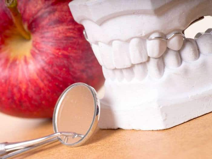 Infections dentaires et parodontales