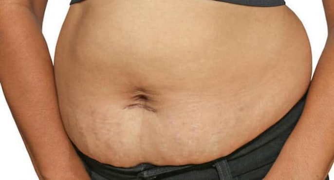 Consejos para ayudarle a perder su grasa después del embarazo