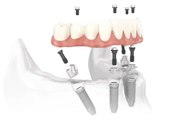 Dentadura permanente: Prós e contras