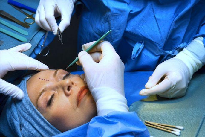 Ritidectomía: procedimiento de elevación de la cara