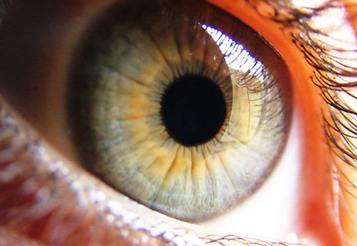 Erosión corneal recurrente