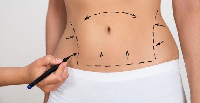 腹壁风险和并发症