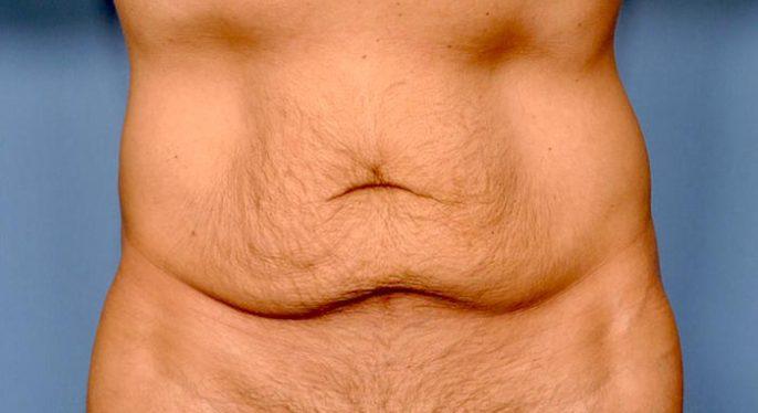 El aumento de peso después de la cirugía estética de abdomen