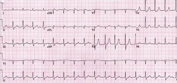 El bloqueo de la rama derecha en el corazónEl bloqueo de la rama derecha en el corazón