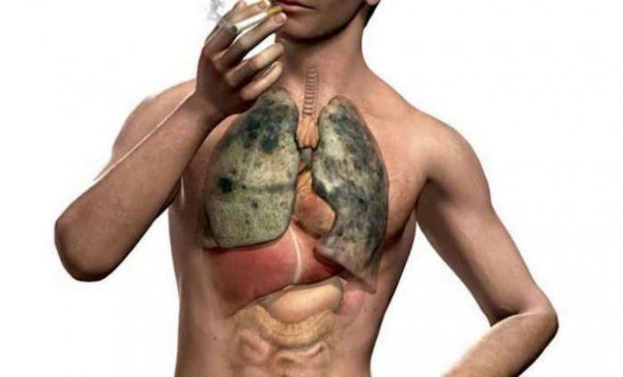أمراض الرئة: انتفاخ الرئة ودخان التبغ