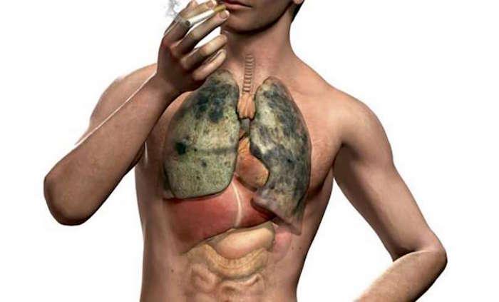 फेफड़े की बीमारियों: वातस्फीति और तम्बाकू धूम्रपान
