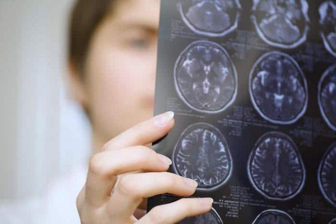 मल्टीपल स्केलेरोसिस: जो स्वस्थ होने जा रहा है? जो relapses के साथ एमएस का विकास होगा?