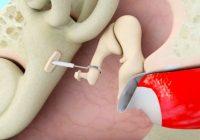 Estapedectomía para la otosclerosis