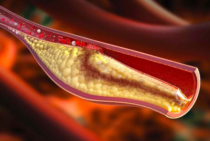 Hipercolesterolémia: Alto nível de colesterol