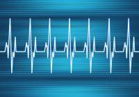 خفقان القلب: الأسباب والمخاطر والعلاج