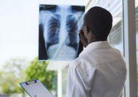 Neue Behandlung für akutes Atemnotsyndrom entdeckt