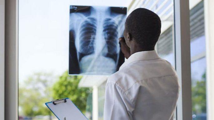 Nouveau traitement découvert pour le syndrome de détresse respiratoire aiguë
