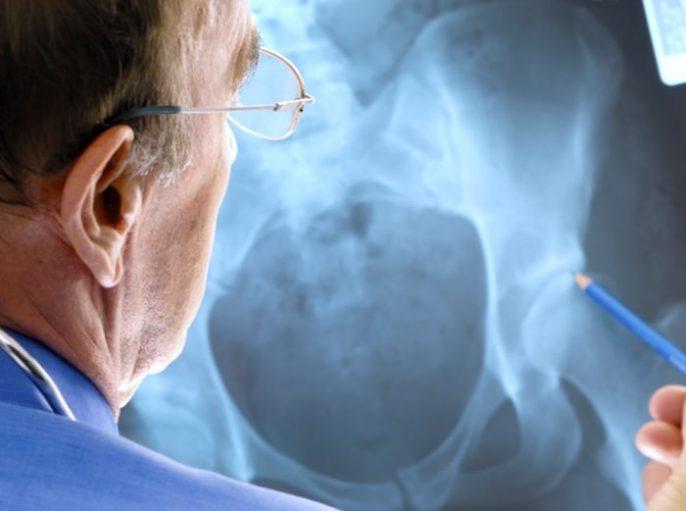 Misterioso tumor cerca del hueso de la cadera