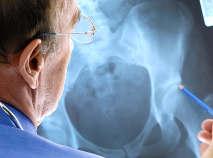 कूल्हे की हड्डी के पास रहस्यमय ट्यूमर