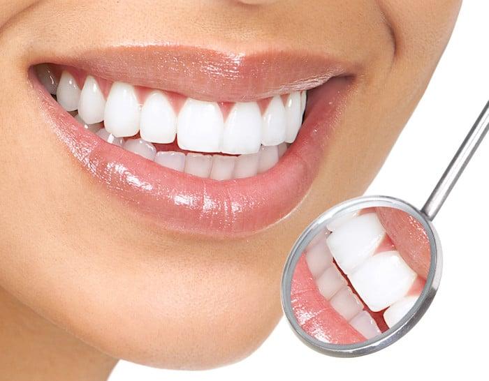 Kako da bo vaše dlesni, da bo bolj jasno?