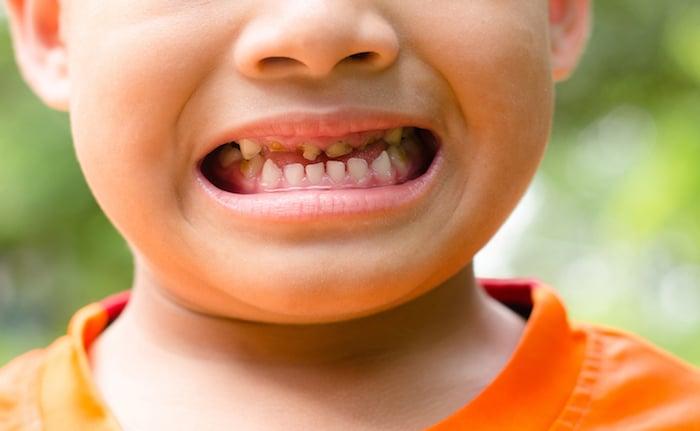 La caries dental en la infancia: la nueva epidemia