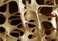La osteoporosis mas que una enfermedad sólo para mujeres