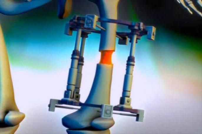Clínica de Rusia ofrece cirugía de alargamiento de piernas
