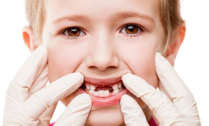 O que esperar quando os dentes permanentes do seu filho estão chegando