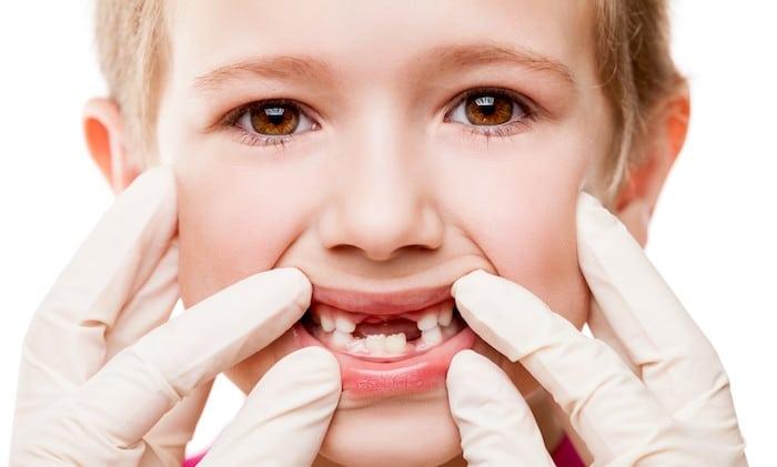 क्या उम्मीद की जाए जब अपने बच्चे की स्थायी दांत आ रहे हैं