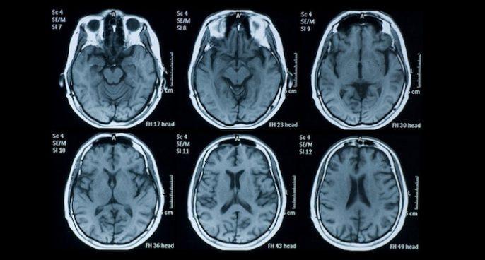 Fasten, wie Sie Ihr Gehirn retten können (und warum studieren große Pharmaunternehmen das nicht?)