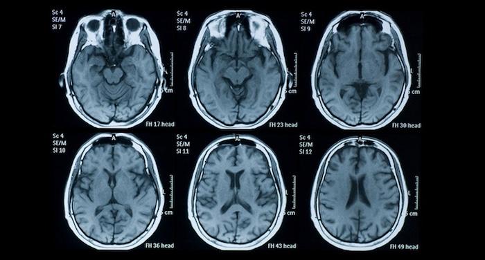 O jejum como você pode salvar o seu cérebro (e Por que as grandes empresas farmacêuticas não estudassem?)