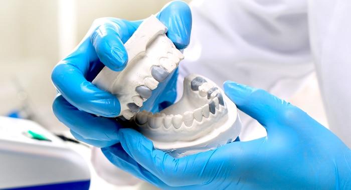 ¿Qué tipo de corona es lo mejor para los dientes?