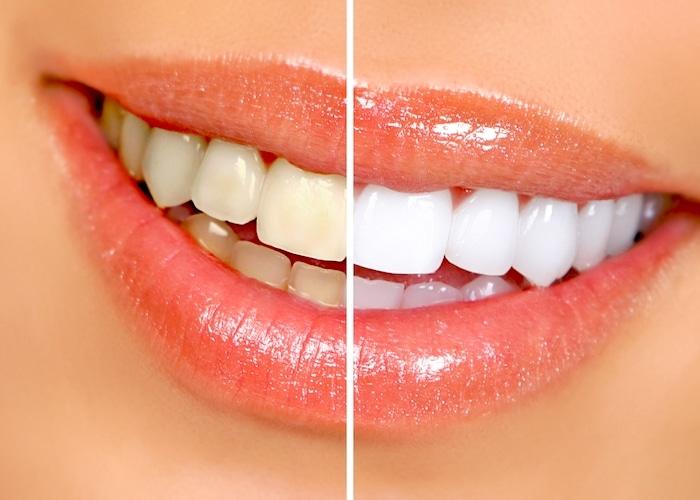 Kako beljenje varno in učinkovito zobe doma