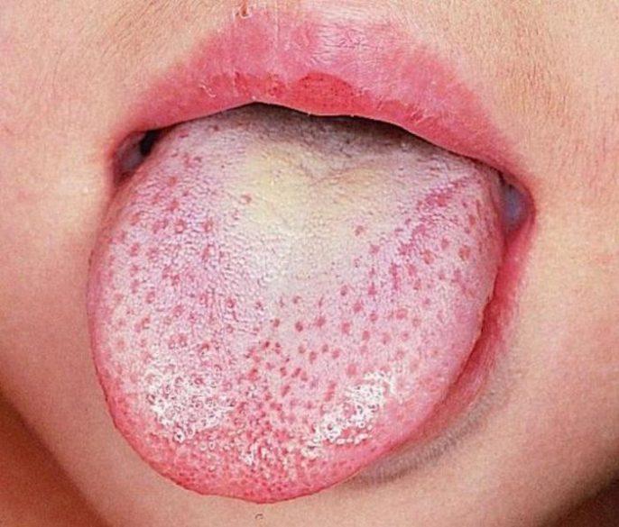 Cosas filosas y boca seca: ¿por qué?
