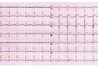 ¿Qué es la fibrilación ventricular?