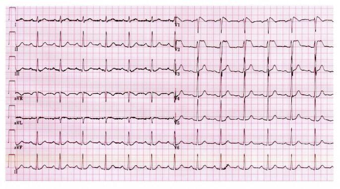 O que é fibrilação ventricular?