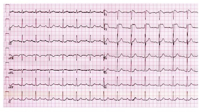 Kaj je ventrikularno fibrilacijo?