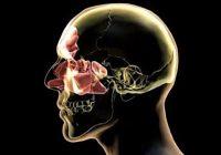 الورم الحبيبي فيجنر: التشخيص والعلاج