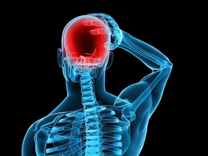 intracranial उच्च रक्तचाप: seudotumor मस्तिष्क