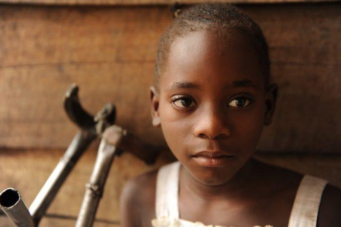 شلل الأطفال أو شلل الأطفال: مرض فيروسي مشلول