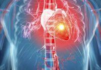 كم تعرف عن الأزمة القلبية؟