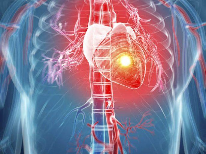 ¿Cuánto sabes sobre el ataque al corazón?