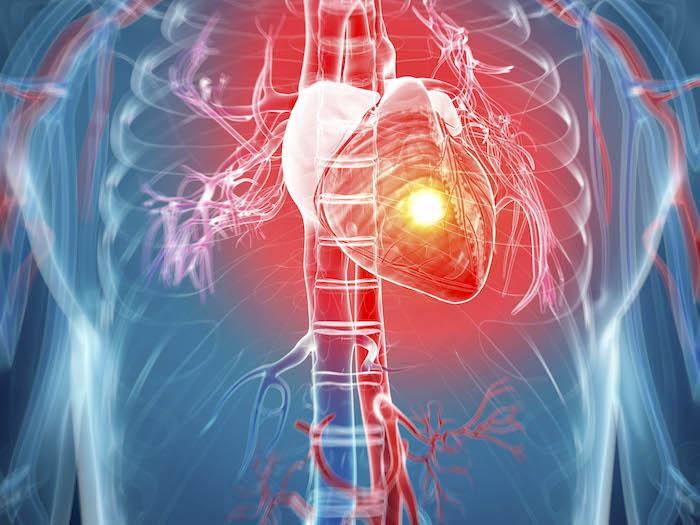 Comment bien savez-vous à propos de la crise cardiaque?
