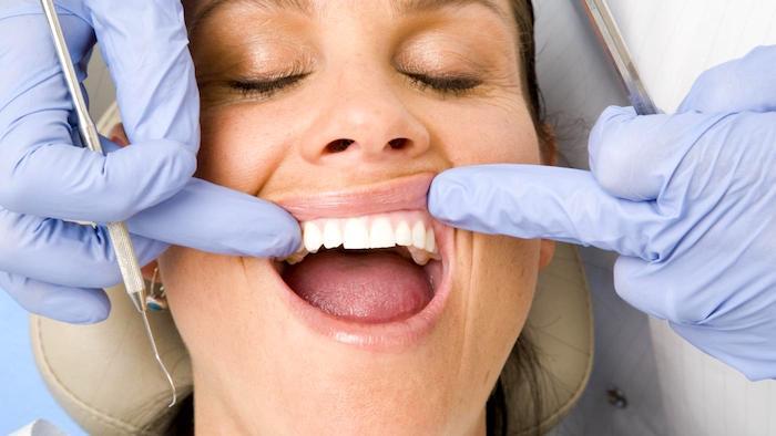 牙龈瘙痒的持久性