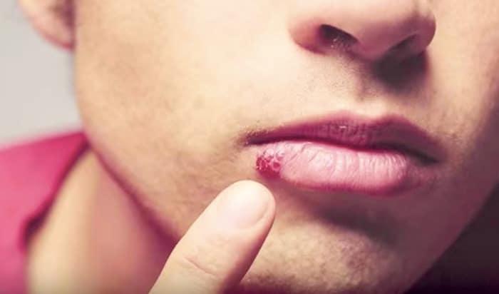 感染炎症的唇