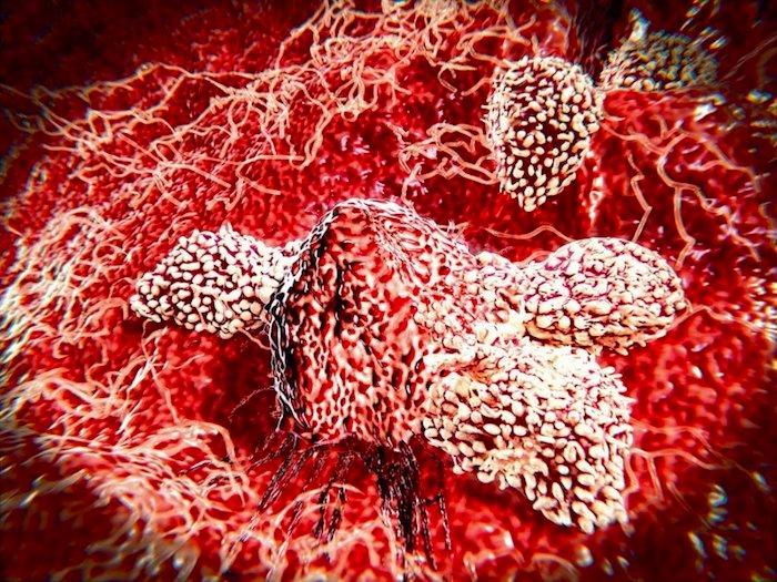 结合免疫疗法提高了生存率中癌症患者的皮肤