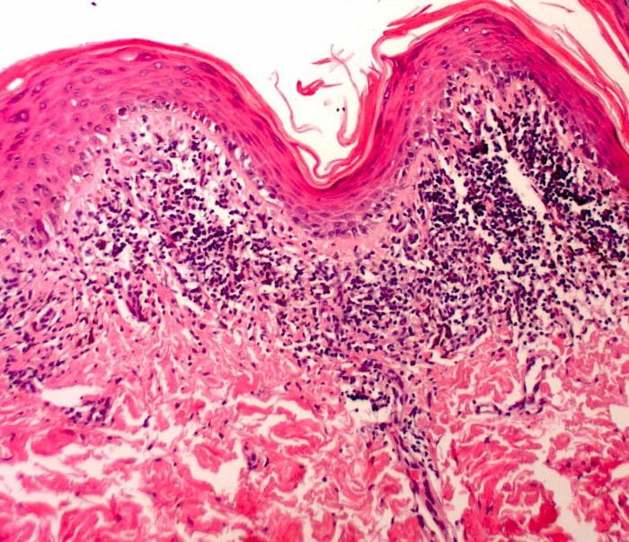 Le Lichen plan Vs lichen escleroso