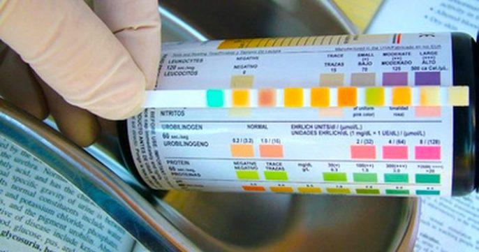 البول الأخضر؟ الغذاء والأدوية والظروف الصحية التي تجعلك يتبول أخضر