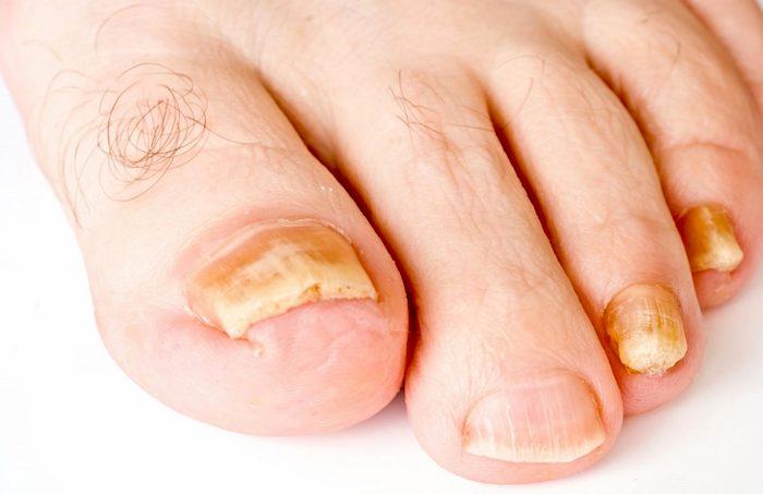 Zdravljenje glivic na nohtih