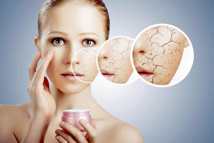 ¿Qué causa la piel seca en invierno y cómo tratarla?