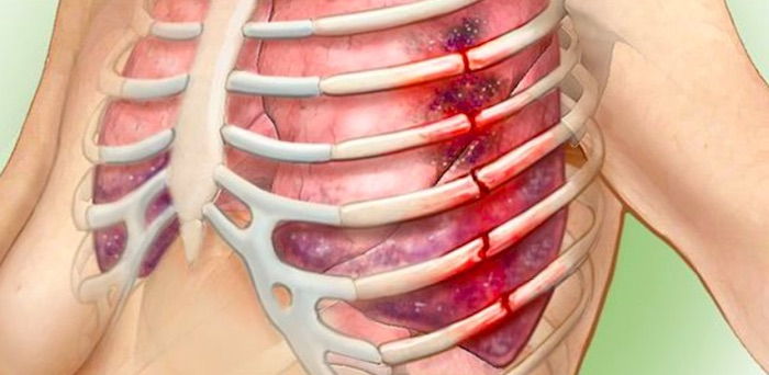 肋骨骨折: 原因, 症状和治疗