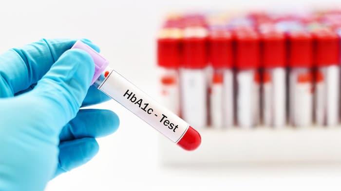 Hemoglobin A1C: kaj razkriva o nadzoru sladkorne bolezni in kaj ne