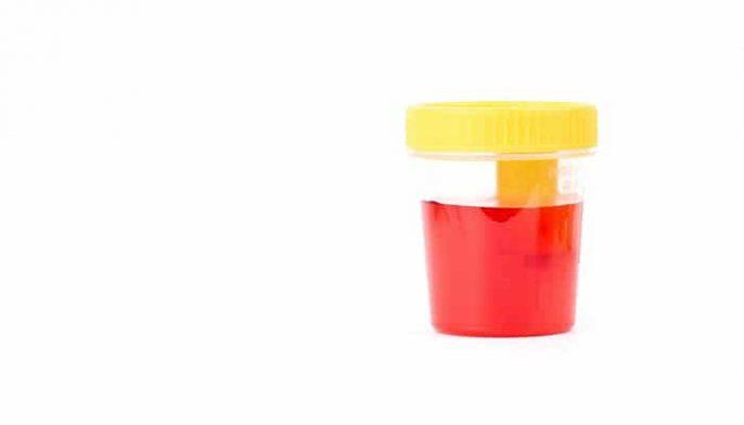 Orina roja: ¿significa que tengo sangre en mi orina y tengo un problema de riñón?