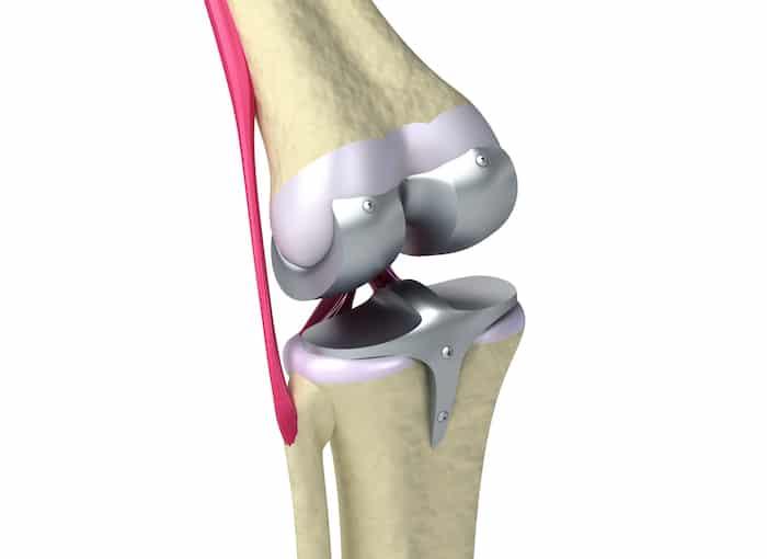 O que é um substituto parcial de joelho?